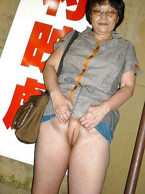 paradoxical adult bald asian women