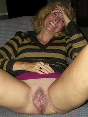 bungler of age vulva integument